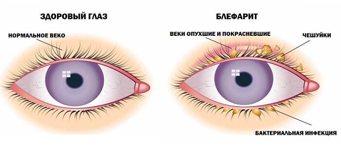 Здоровый глаз и блефарит