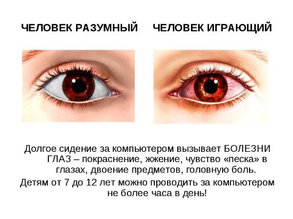 Болезнь глаз от компьютера