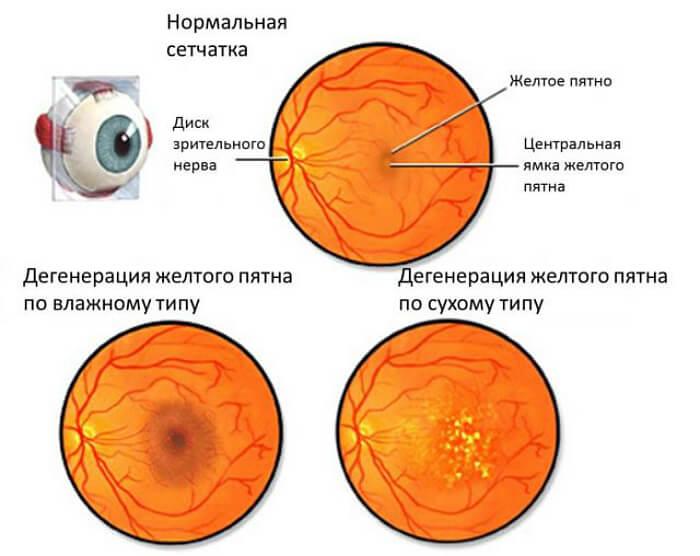 Дистрофия глазной сетчатки