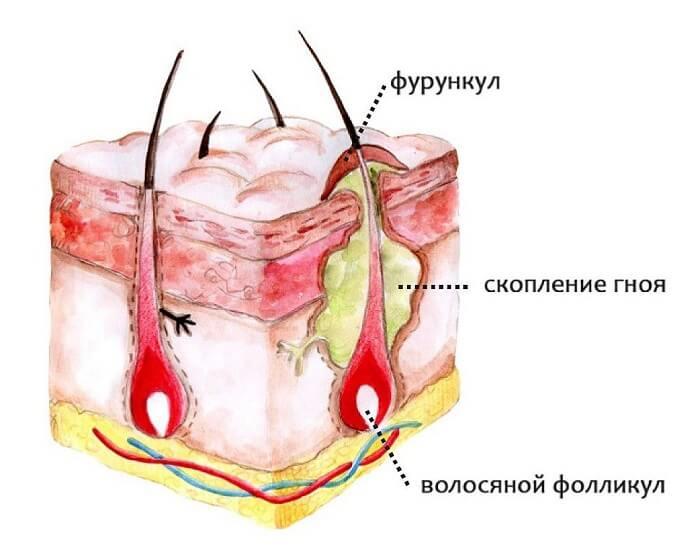 Фурункулез на глазу человека