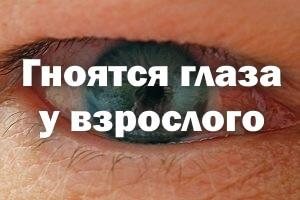 Гноятся глаза у взрослого - чем лечить