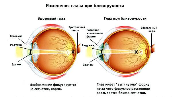 Изменение глаза при близорукости