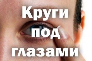 Темные круги под глазами, причины