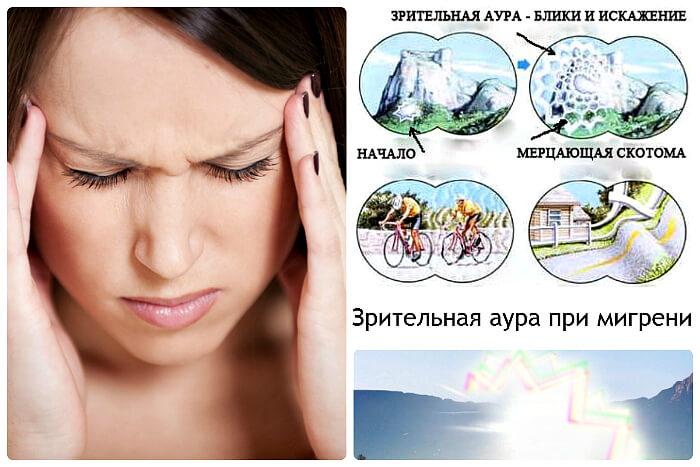 Мерцание при мигрени
