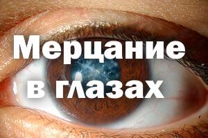 Мерцание в глазах - причины