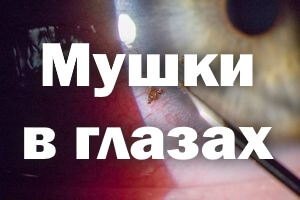 Мушки в глазах - причина и лечение