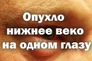 Опухло нижнее веко на одном глазу