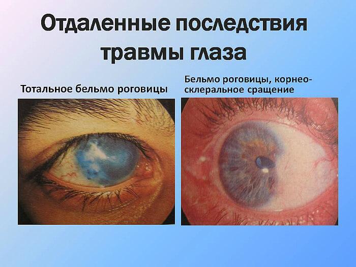 Последствия травм глаз