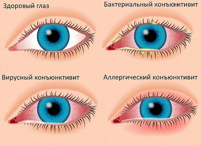 Разновидности воспаления глаз