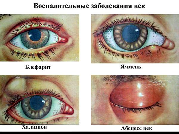 Воспалительные болезни глаз