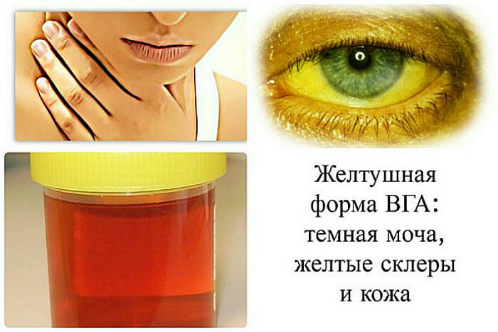 Желтушная болезнь