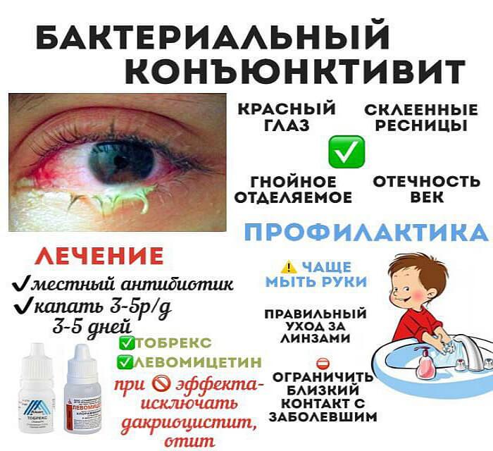 Бактериальная болезнь