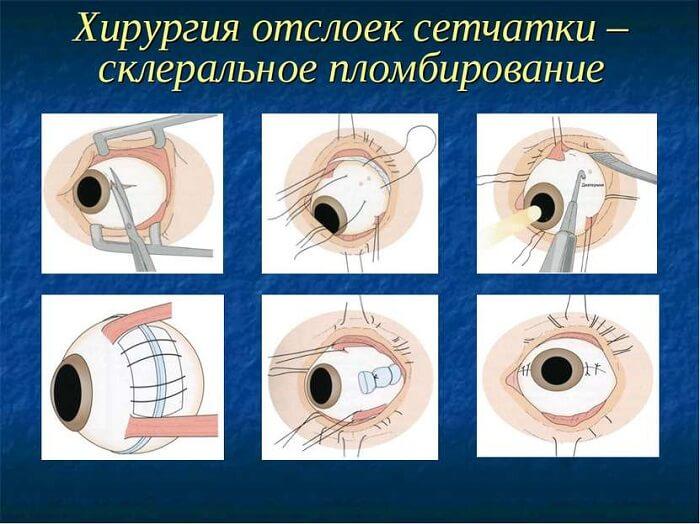 Хирургия отслойки сетчатки
