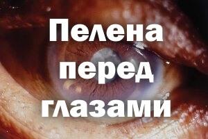 Пелена перед глазами - причины