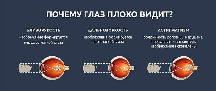 Причины проблем со зрением