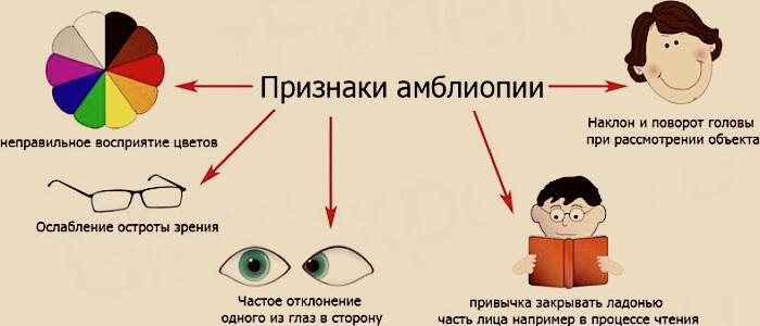 Признаки амблиопии глаз