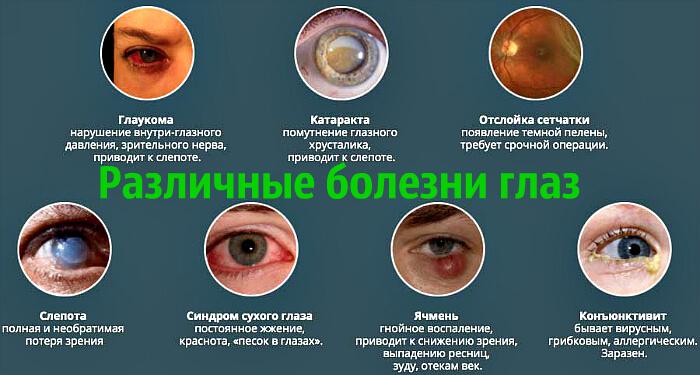 Разновидности болезней