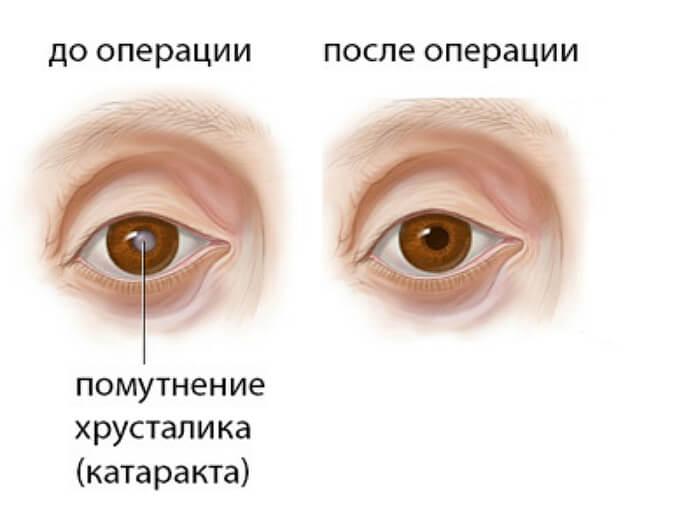 Результат операции