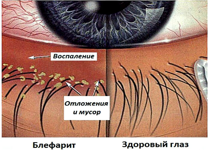 Блефарит глазного яблока