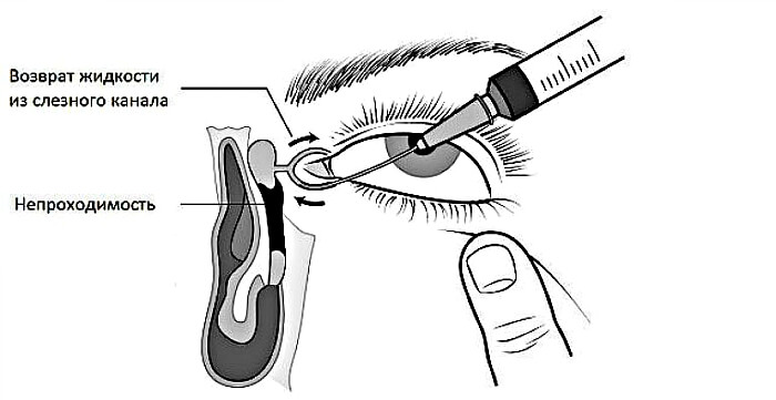 Бужирование слезного канала