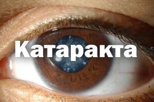 Катаракта - причины, симптомы лечение и профилактика