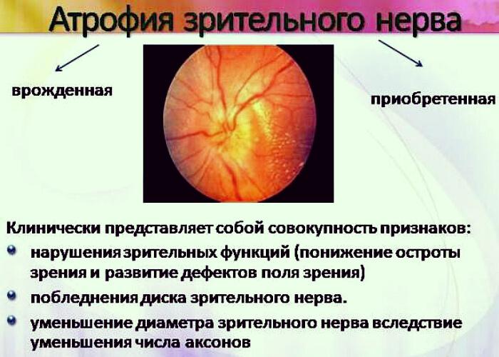 Клиническая картина атрофии
