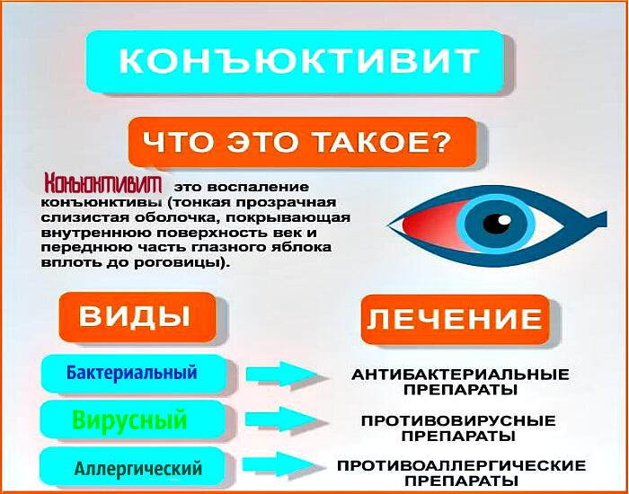 Конъюктивит глаз