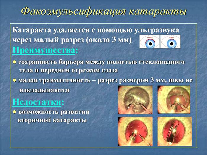 Особенности устранения катаракты