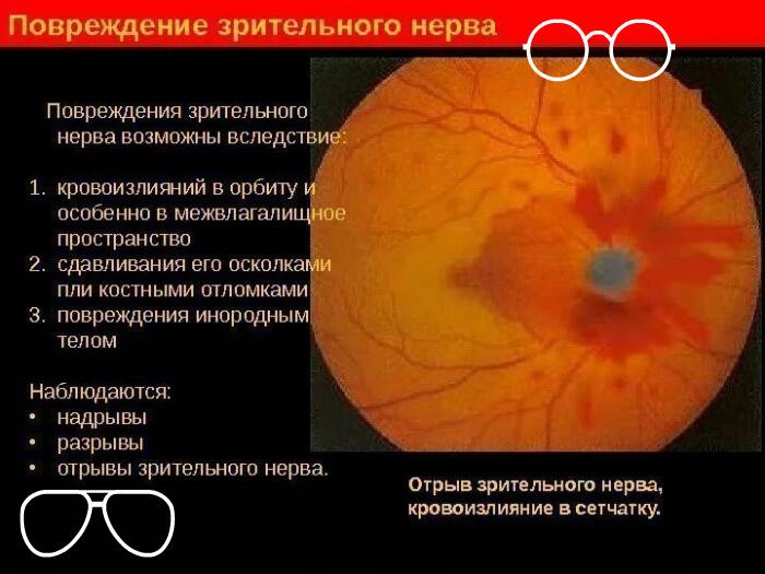 Повреждения зрительного нерва