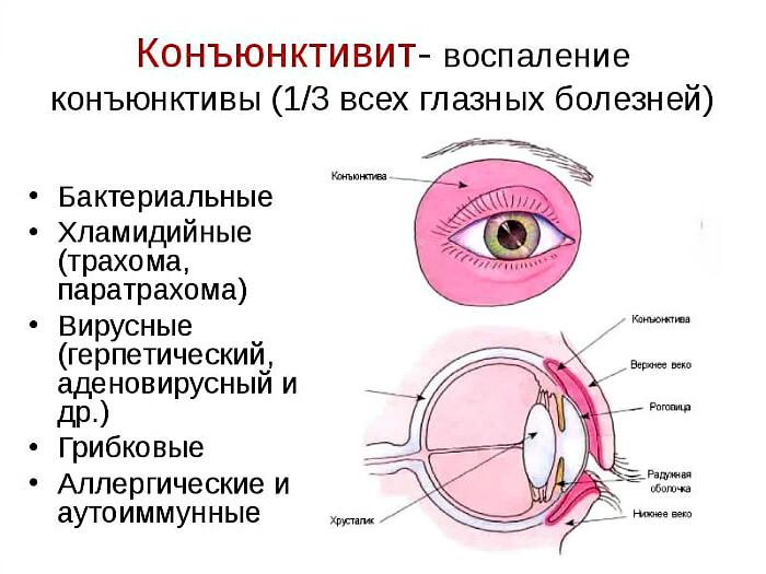 Разновидности болезни