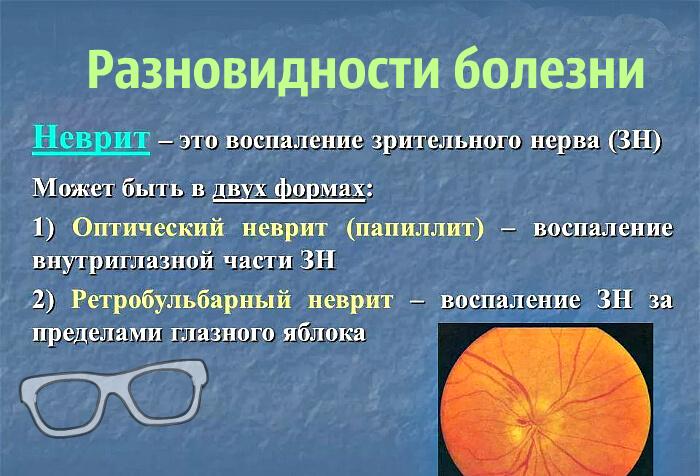 Разновидности зрительного неврита