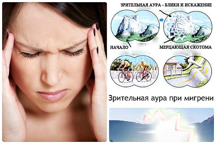 Рябь при мигрени