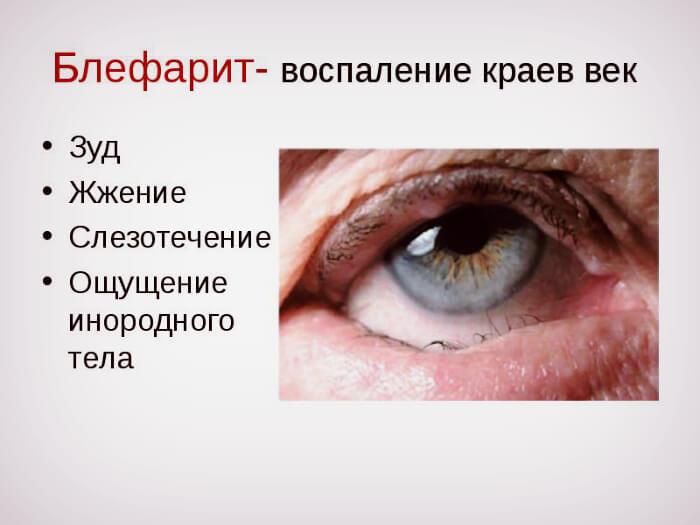Симптомы воспаления век