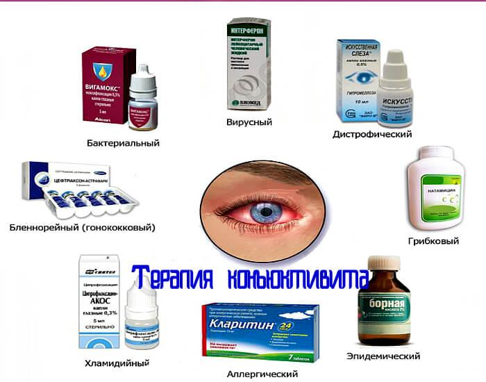 Терапия конъюктивита