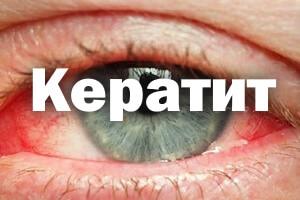 Кератит - симптомы и лечение
