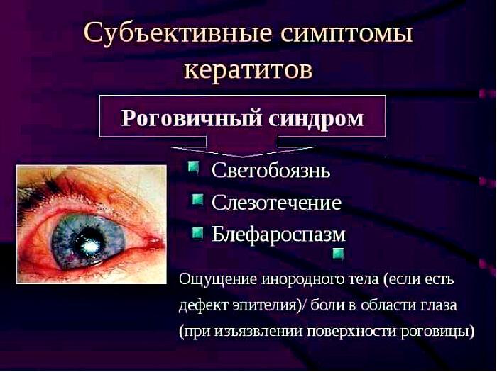 Основные признаки кератита