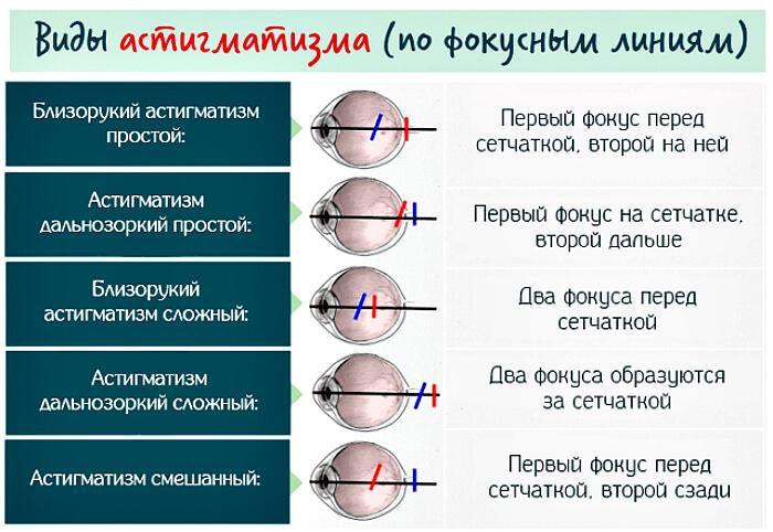 Разновидность по фокусным линиям