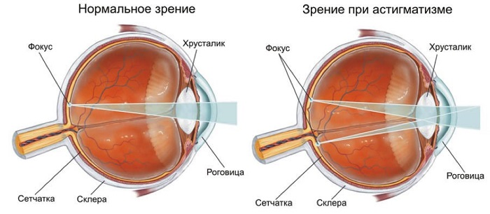 Сравнение глаз